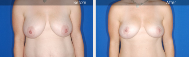 Before and After Breast Lift Boca Raton