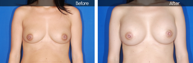 Before & After Breast Augmentation | David Bogue MD