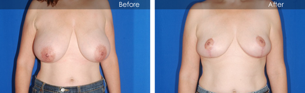 Before & After Breast Reduction | David Bogue MD Plastic Surgery