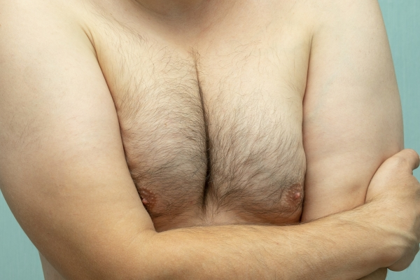 man with gynecomastia with his arms folded across his shirtless chest