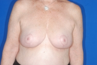 No. 2 Breast Reduction Patient after surgery
