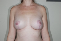 Breast Revision Patient After Surgery