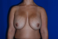 Augmentation mastopexy before picture