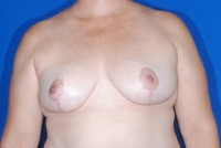No. 3 Breast Reduction Patient after surgery