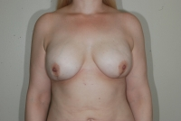 Two stage breast reconstruction with 405 SMPX Gel implants