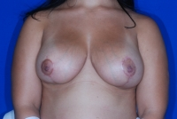 Augmentation mastopexy after picture