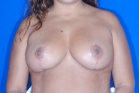 Breast Reduction Patient after surgery