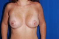 Front view of breast augmentation patient after