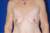 Breast Augmentation Patient Before Surgery