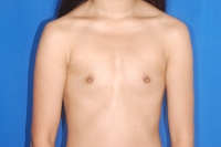 Before Breast Augmentation Surgery