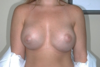 After Breast Enlargement Surgery