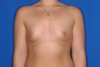 Before Breast Enlargement Surgery