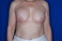 Breast Implant Revision Patient Before Surgery