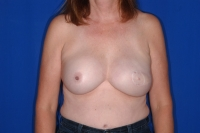 After Surgery Breast Implant Revision Patient