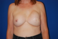 Before Surgery Breast Implant Revision Patient