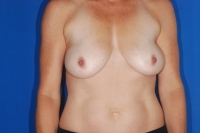 Before Surgery Breast Lift Patient