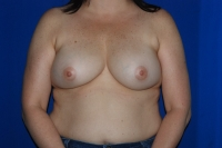 Breast Reconstruction Patient Before Surgery