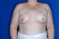 Patient After Breast Reconstruction Surgery