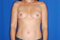 Breast Reconstruction Surgery Patient Before