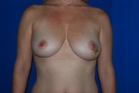 Before Surgery Breast Reconstruction Patient