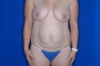 Tummy Tuck Patient Before Surgery