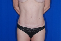 Tummy Tuck Patient After