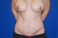 Tummy Tuck Patient After Surgery