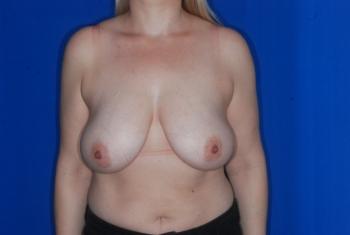 BRCA+