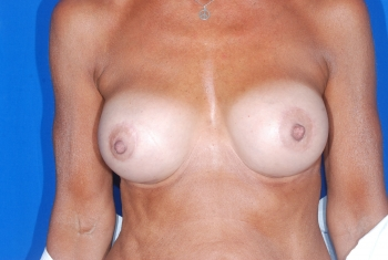 Breast Implant Revision Patient After Surgery