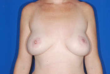 Breast Revision Patient Before Surgery
