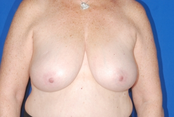 No. 2 Breast Reduction Patient before surgery