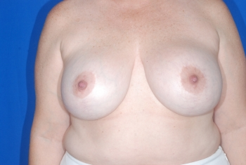 No. 3 Breast Reduction Patient before surgery