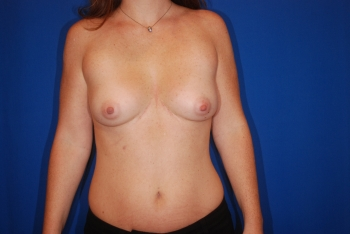 Front view of breast augmentation patient before