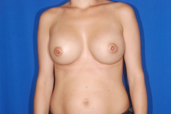 Patient After Breast Enlargement