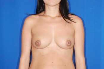 Patient Before Breast Enlargement