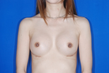 Patient After Breast Augmentation Surgery
