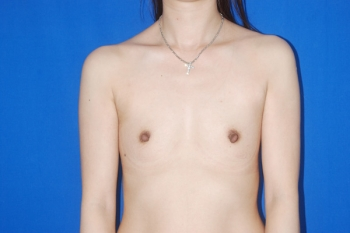 Patient Before Breast Enlargement Surgery