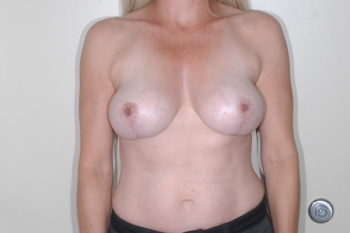 After Surgery Breast Lift Patient
