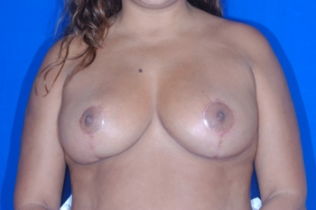 Breast Lift Patient After Surgery