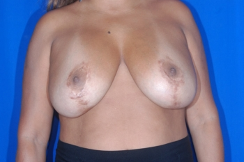 Breast Lift Patient Before Surgery