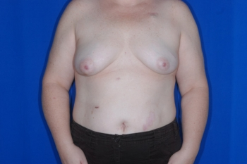 Patient Before Breast Reconstruction Surgery