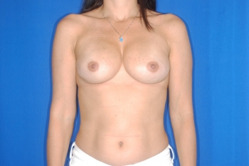 Breast Reconstruction Surgery Patient After