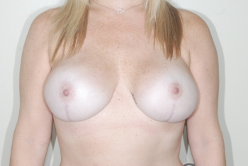 After Surgery Breast Reconstruction Patient