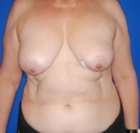 Breast Reconstruction Patient after surgery