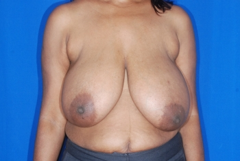 Breast Reduction Patient before surgery