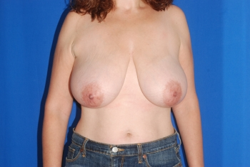 Before Surgery Breast Reduction Patient