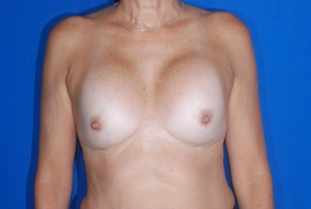 Ruptured silicone gel implants and capsular contracture
