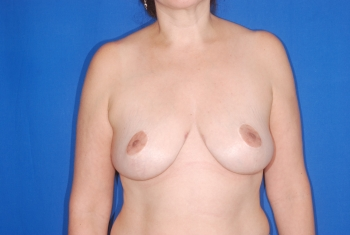 After Surgery Breast Reduction Patient