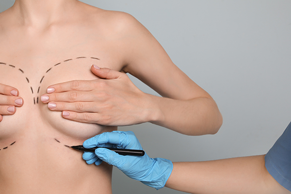 Boca Raton woman holds breasts while plastic surgeon draws surgical lines.